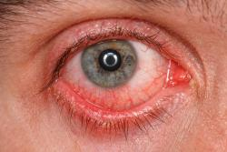 What Is Conjunctivitis?