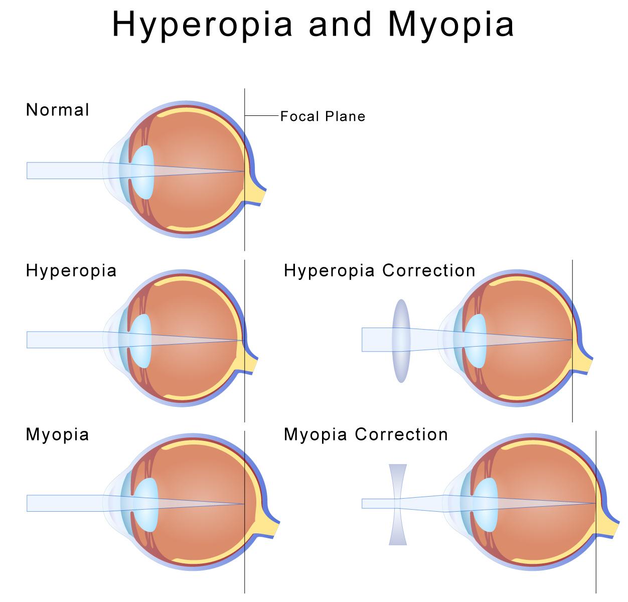 cortical visual processing in axial myopia essay