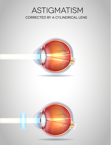 Correct your astigmatism with toric contact lenses