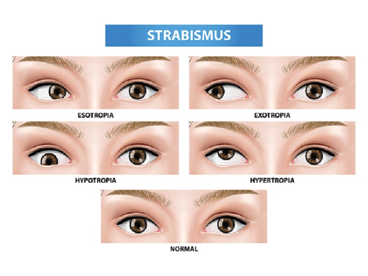 Strabismus - Squint