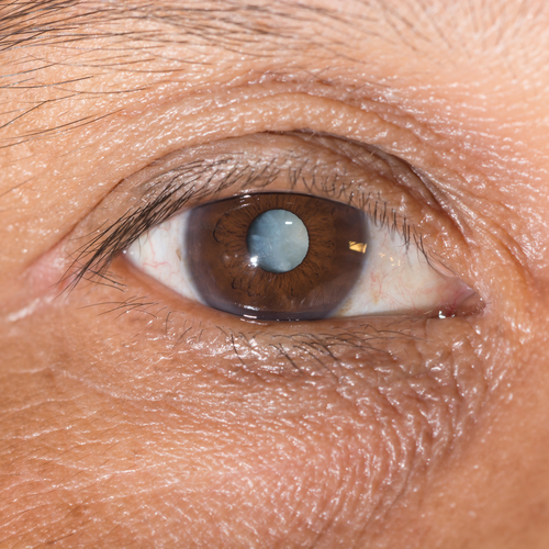 Mature Cataract